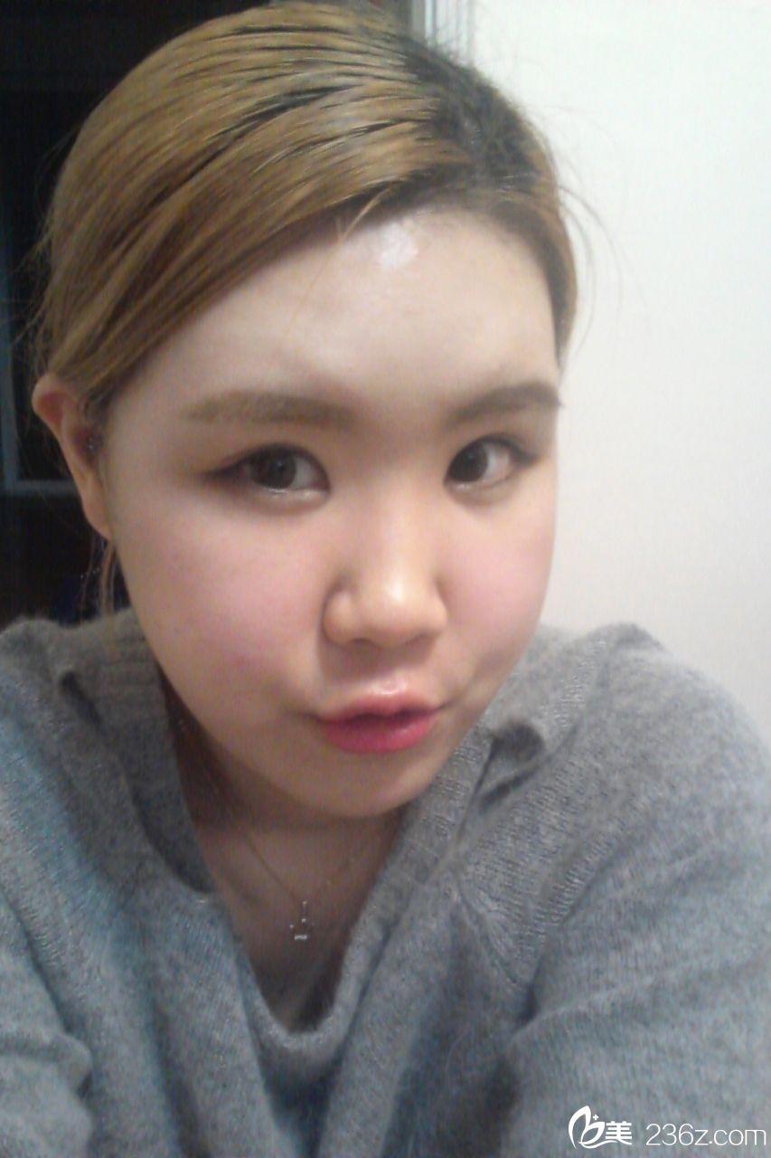 选择韩国原辰整形外科 &bsp;给自己一个改变的机会手术前3