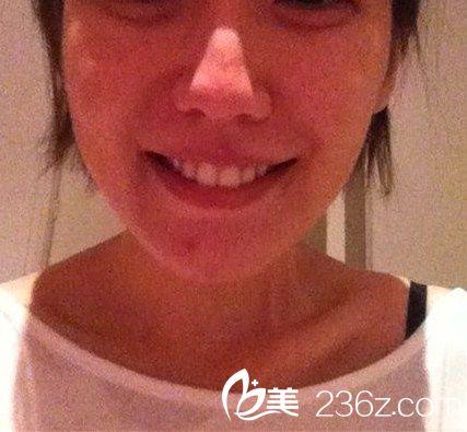 心路历程:  因为我以前牙齿有点不齐,所以我做了牙齿矫正