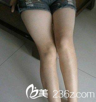 我的心路历程:  我的腿部有疤,每到夏天的时候老爱穿短裙