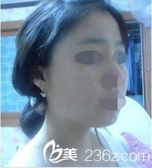 南京华美美容医院下颌角手术怎么样?多少钱?真人案例