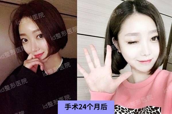 韩国id整形外科做VLINE下颌角+芭比鼻整形两年了