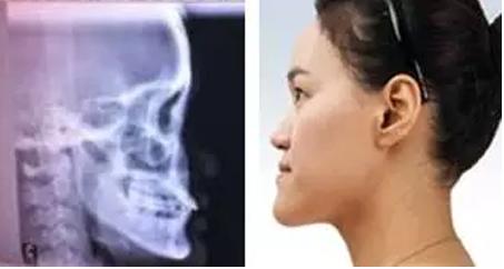 下巴后缩整形必须用假体隆下巴吗?上海九院和韩国灰姑娘那个隆下巴贵?
