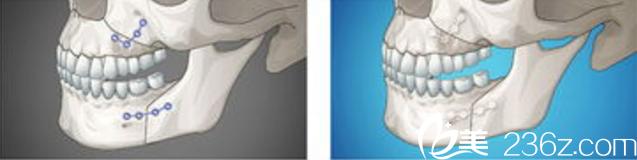 双鄂修复手术—韩国id医院—术中钛钉固定