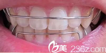 华西医院口腔科——牙齿矫正保持器