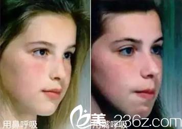 华西医院口腔科-不良习惯影响口唇方式