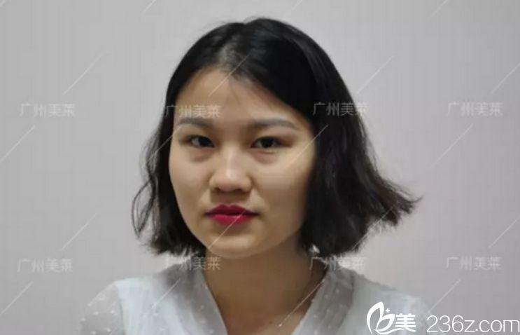 自体脂肪填充对比图,广州美莱自体脂肪填充面部对比图