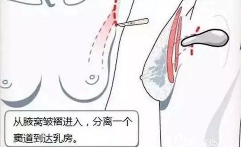 腋下切口隆胸恢复快吗