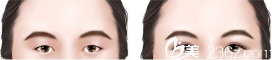 呼和浩特京美医疗美容医院双眼皮仅需880