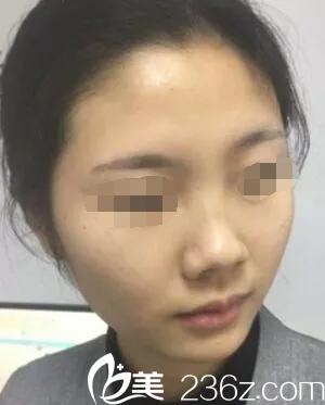 韩国哪家医院做鼻综合比较好?will医院鼻综合真人案例