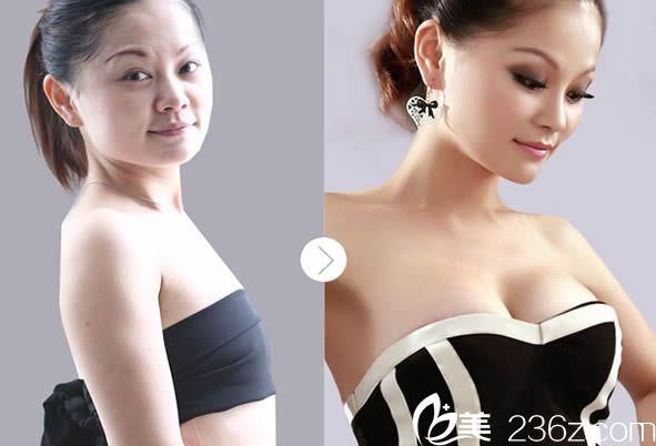 韩国内窥镜隆胸对比效果图
