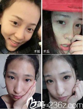 李丽强双眼皮案例图