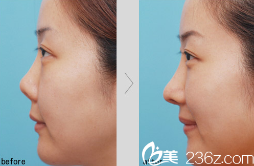 济南瑞丽医院假体隆鼻加耳软骨垫鼻尖爆款特价4999元