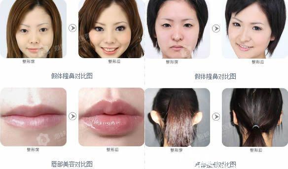 薛克墘假体隆鼻和唇部整形案例