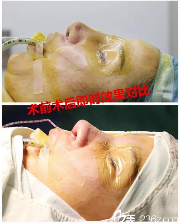 广州海峡李希军做鼻子厉害吗?成功的隆鼻失败修复案例图告诉你