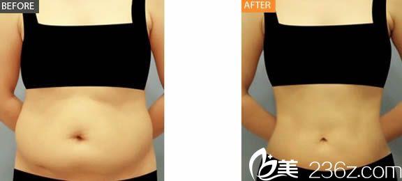 腰腹部吸脂案例图
