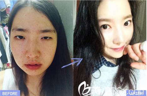 下颌角术后体验,韩国灰姑娘医院案例