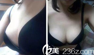 找长春中妍赵胜有专家花53600元做假体隆胸的全过程