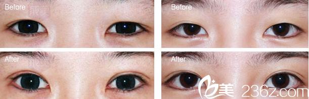 韩美双眼皮手术前后对比照片