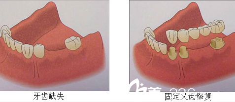 北京康贝佳口腔残缺牙齿示意图