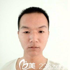 朱先生分享在宁波韩美找陈姗姗医生做点阵激光美肤35天效果图