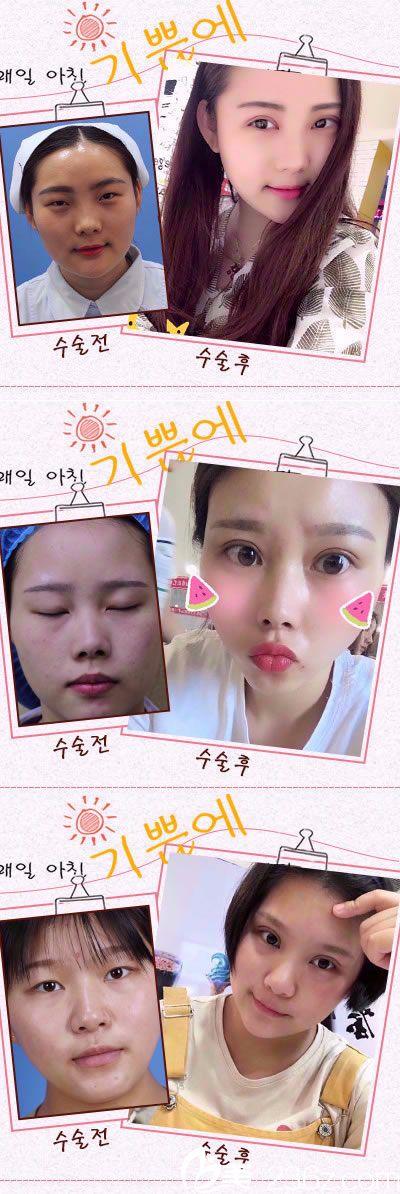 韩美双眼皮案例图