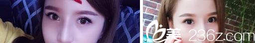四川成都西婵黄亮全切双眼皮+开眼角术后效果图展示