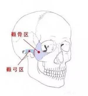 颧骨颧弓的分别