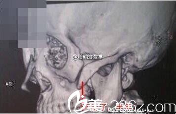 颧骨颧弓手术骨块下移