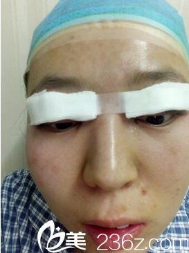 西安同济医院双眼皮整形真人案例
