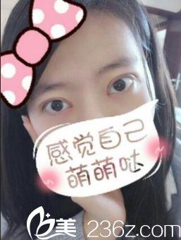 西安同济医院双眼皮手术恢复后第20天