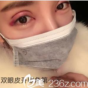成美冯春雨全切双眼皮+开眼角术后1天恢复照