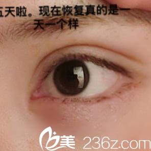 全切双眼皮+开眼角术后5天眼部特写
