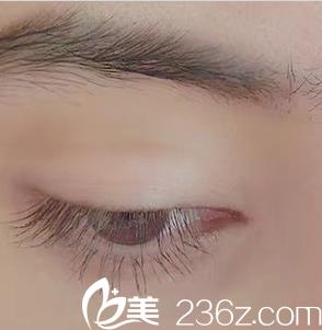成美冯春雨双眼皮+开眼角术后半年恢复效果