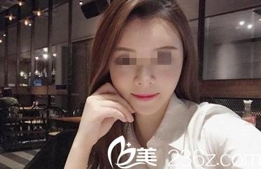 太原花妍年华医疗美容门诊部郝文杰术后照片1