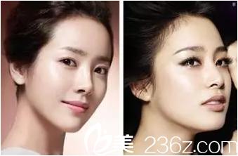 什么样的脸是少女脸?韩国原辰医院告诉你答案