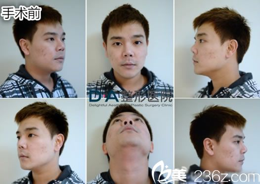做鼻子手术前各个方位图片
