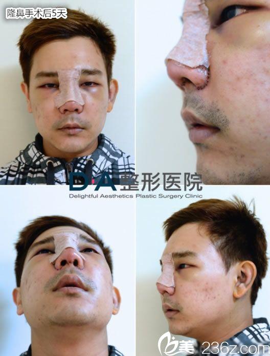 隆鼻手术后5天的恢复效果