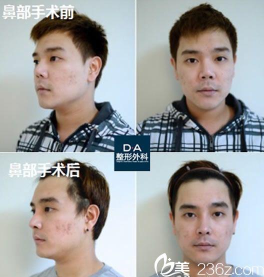 隆鼻手术第4周的效果对比照片
