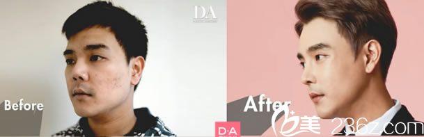 DA整形颧骨和隆鼻手术对比照片