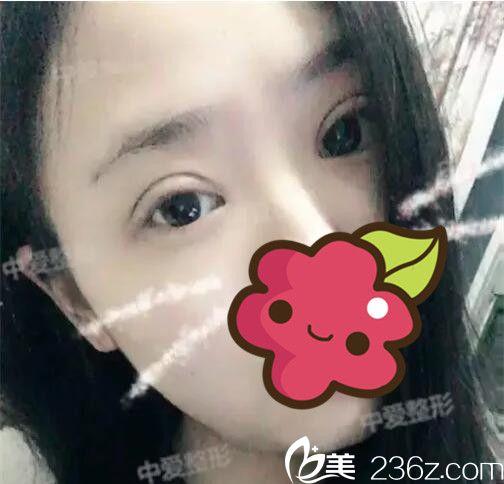 湖北荆州中爱整形医院李林术后照片1
