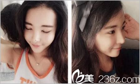 郑州东方眼鼻整形术后3个月