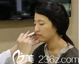 郑州东方整形美容医院贺洁术前照片1