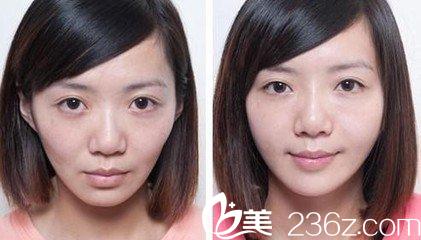 可以让你看起来更加年轻 苹果肌是可爱的符号 如果面部苹果肌消失了