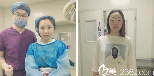 双眼皮手术即刻的效果图