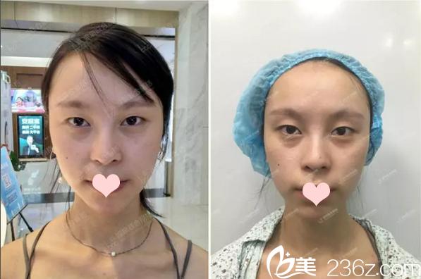 深圳联合丽格医疗美容门诊部裴菁术前照片1