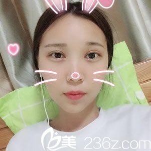 嘉兴市禾美医疗美容医院周宇丹术后照片1