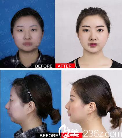 四川米兰柏羽高亮双眼皮+假体隆颏手术对比照