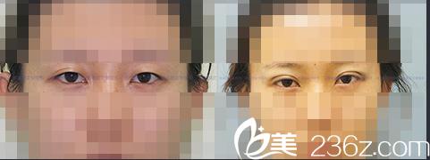 北京新星靓医疗美容案例