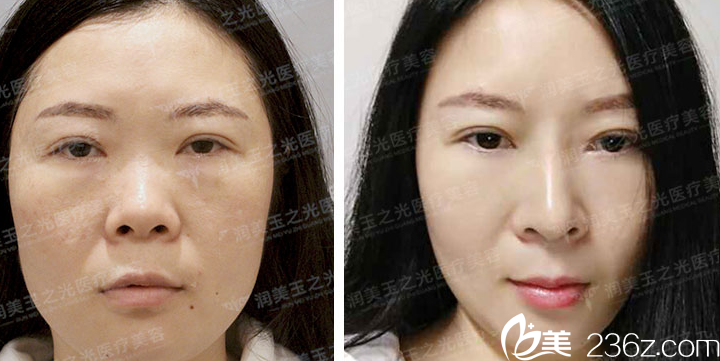 北京玉之光医疗美容案例