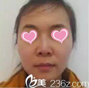 邯郸丽人整形医院乐凤亮术前照片1